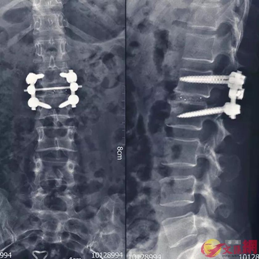 手術後內患者體內植入光纖固定狀態。(本報陝西傳真)