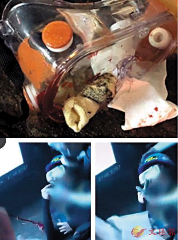 ■上圖為網傳女事主受傷後,布袋彈攝着眼罩情況。下圖則為電視新聞第一時間拍到女事主受傷後,眼罩上未明顯見攝着布袋彈。