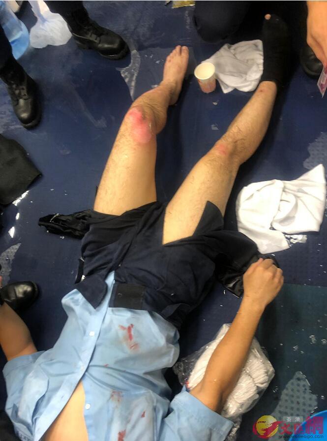■尖沙咀警署內有警員被暴徒投擲的汽油彈擊中,該警員腿部灼傷且身上多處有血跡。大公文匯全媒體攝
