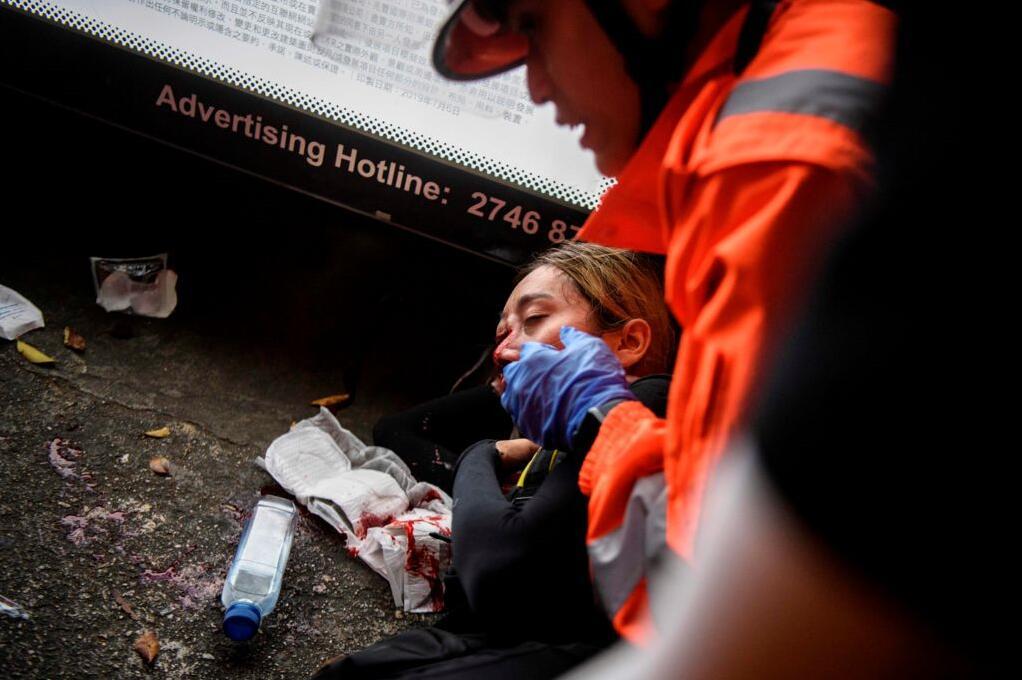 8月11日尖沙咀衝突期間,一參與包圍尖沙咀警署的黑衣女子右眼受傷(法新社資料圖片)