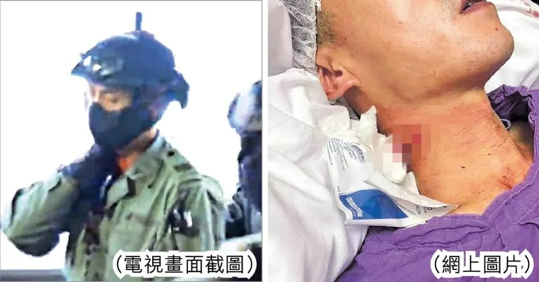 10月13日,一名香港警察在執行任務時遭暴徒割傷頸部。